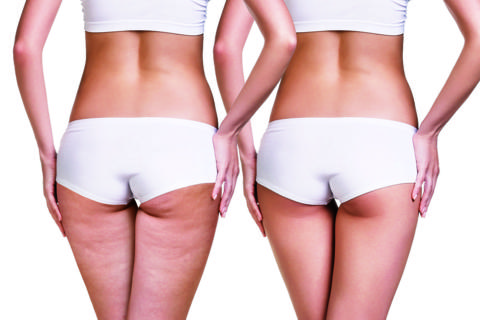 cellulite in palestra
